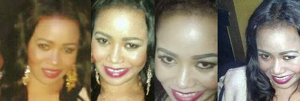 vers-sidika-skin-bleaching-gone-wrong